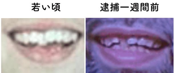 が 覚醒剤 溶ける 歯
