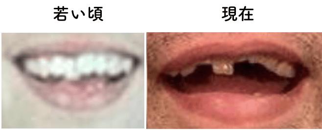歯並び マッキー
