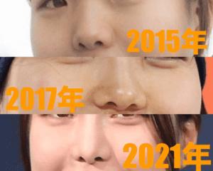 高梨沙羅の2015年2017年2021年の鼻の比較画像